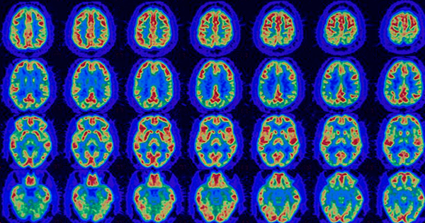 Clinical Laboratory Test for Alzheimer's Disease Gets Ever Closer to Reality